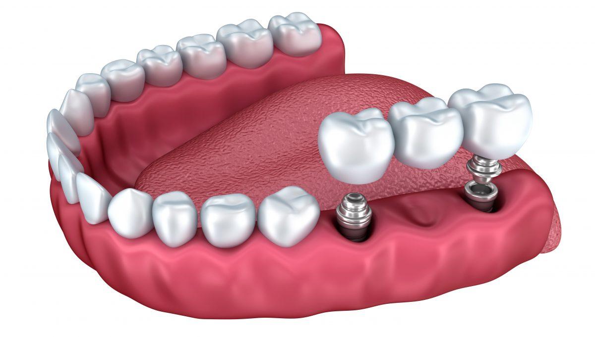 Implantul dentar si avantajele pentru pacienti