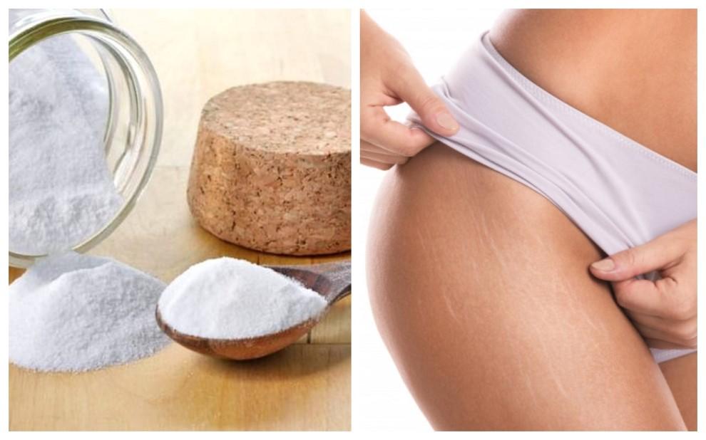 Bicarbonatul de sodiu este un remediu excelent impotriva vergeturilor si face minuni asupra pielii