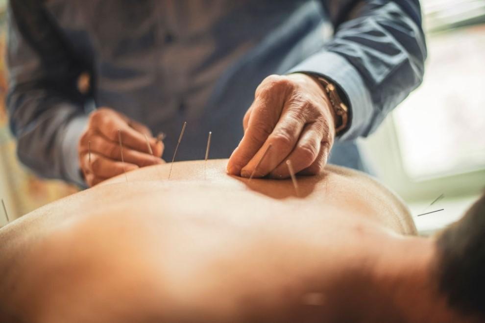 Cum pot fi tratate afectiuni prin acupunctura