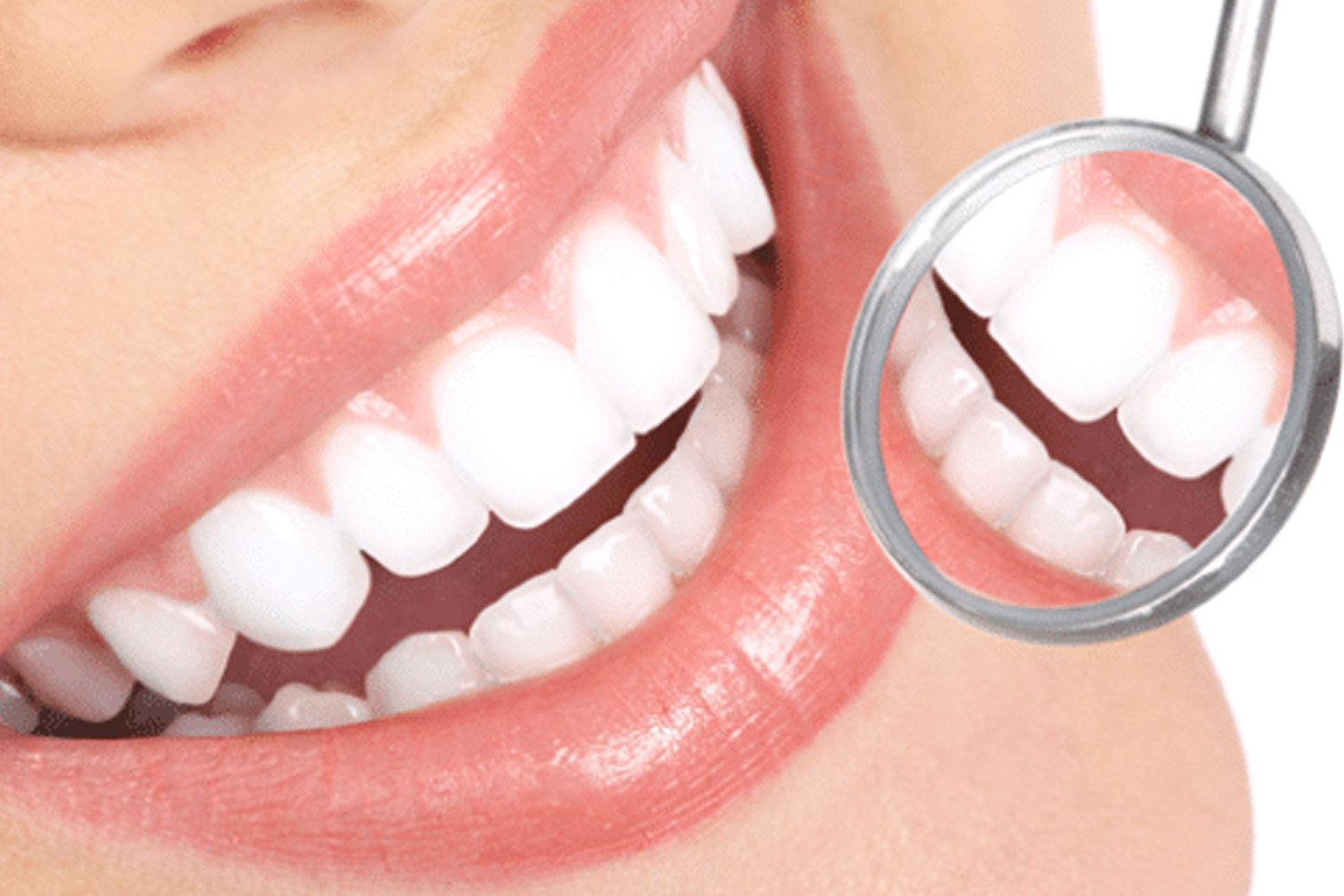Cand este momentul sa apelezi la tratamentul de albire a dintilor?